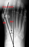 Hallux valgus-alisson-pronier-pedicure-podologue-nandy-savigny-le-temple-carre-senart