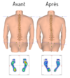 Schema posture podologie podologue paris