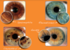 Bilan iridologie - Catherine Lefresne