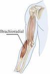 muscle brachio radial, marie messager ostéopathe à Nandy, proche de savigny le temple cesson, vert saint denis, moissy cramayel, melun, seine port