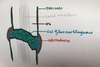 construction d'un cal fibre cartilagineux évolution de la fracture
