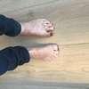 course des orteils exercice pour aponévrose plantaire par osteopathe à Nandy
