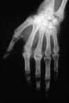 polyarthrite rhumatoide radiographies