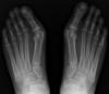 radiographie hallux valgus osteo nandy