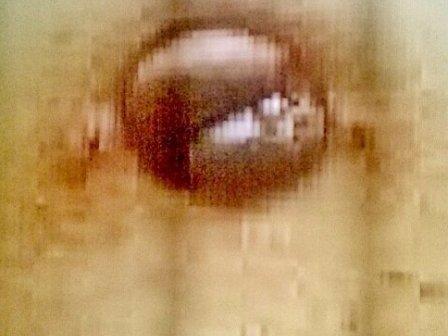 Photo 4 Endométriose disparue et apparition d'une couleur saine à la place de la nécrose ( Photo 1)