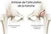 arthrose-hanche-caroline-charles-osteopathie-guyancourt