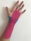 pose de kinésio taping pour syndrome du canal carpien par ostéopathe à Versailles