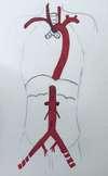 anatomie de l'aorte aorte ascendante aorte thoracique arc aortique aorte abdominale