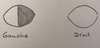 hémianopsie nasale gauche atteinte nerf optique lésion latérale chiasma optique