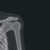 radiographie de l'épaule imagerie capsulite retractile osteopathe versailles